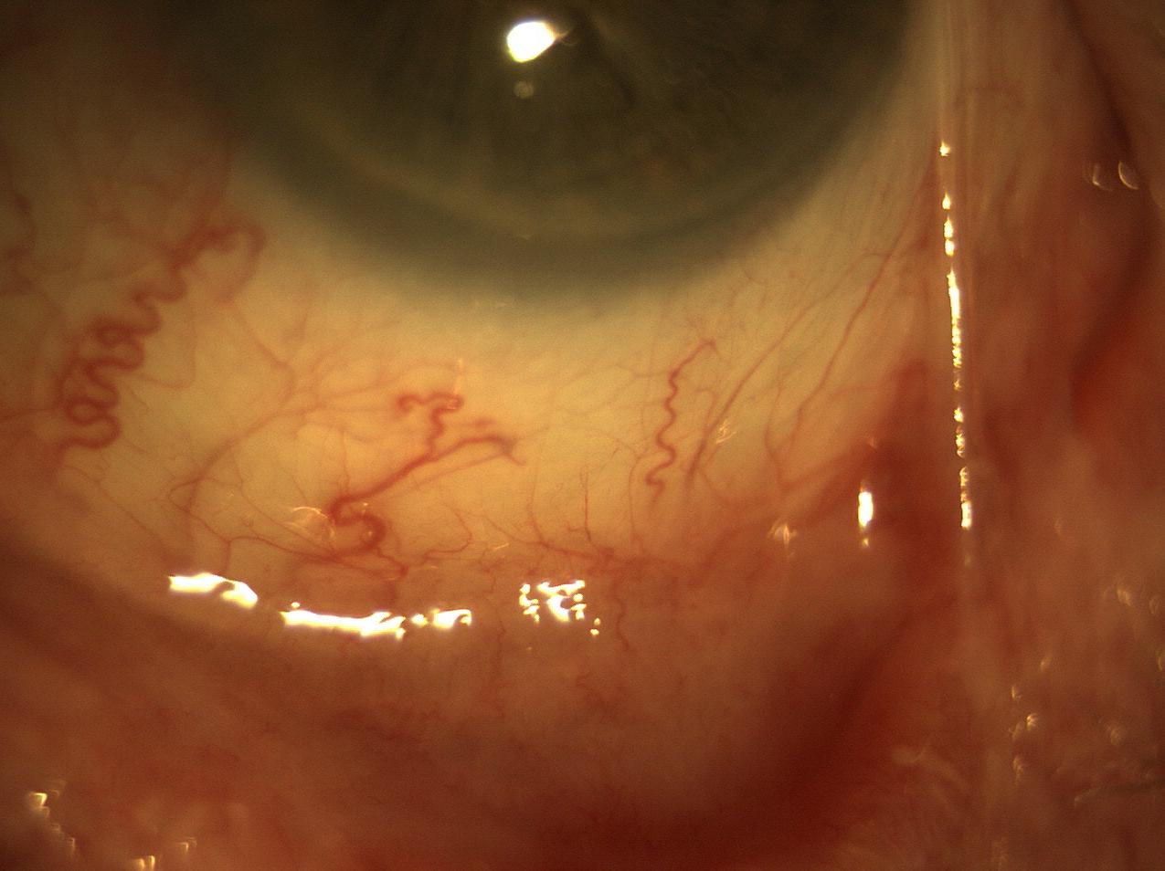 Ocular Cicatricial Pemphigoid