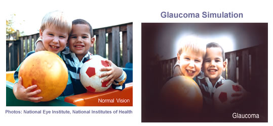 Glaucoma Simulation