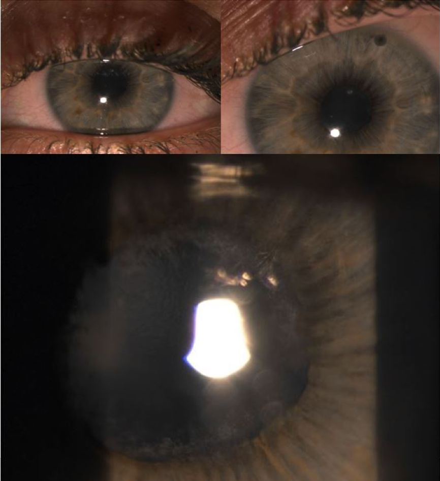 young woman 20s acute glaucoma