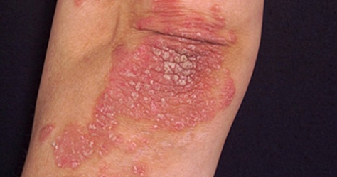 figure 1 typical appearance of psoriasis on the elbow