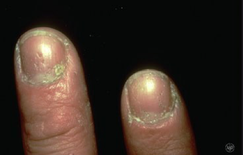 figure 3 nail psoriasis with nail pitting